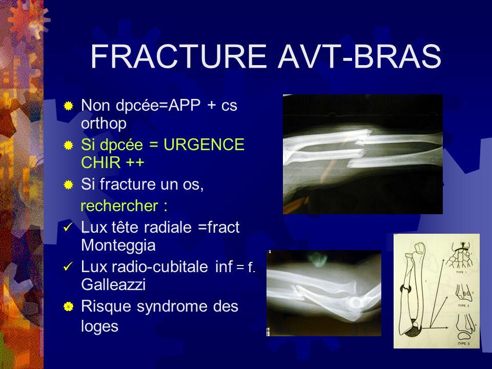 FRACTURE AVT-BRAS Non dpcée=APP + cs orthop Si dpcée = URGENCE CHIR ++