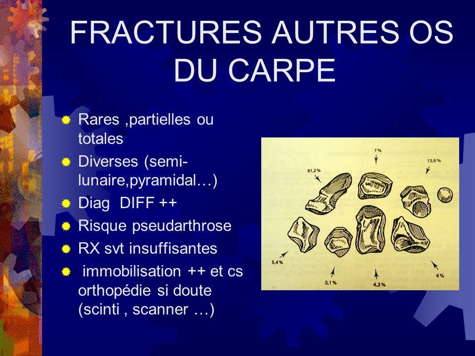 FRACTURES AUTRES OS DU CARPE