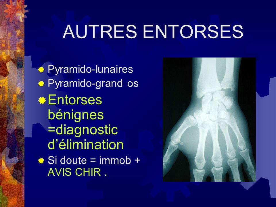 AUTRES ENTORSES Entorses bénignes =diagnostic d'élimination