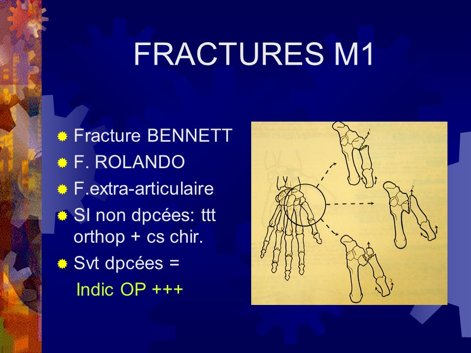 FRACTURES M1 Fracture BENNETT F. ROLANDO F.extra-articulaire