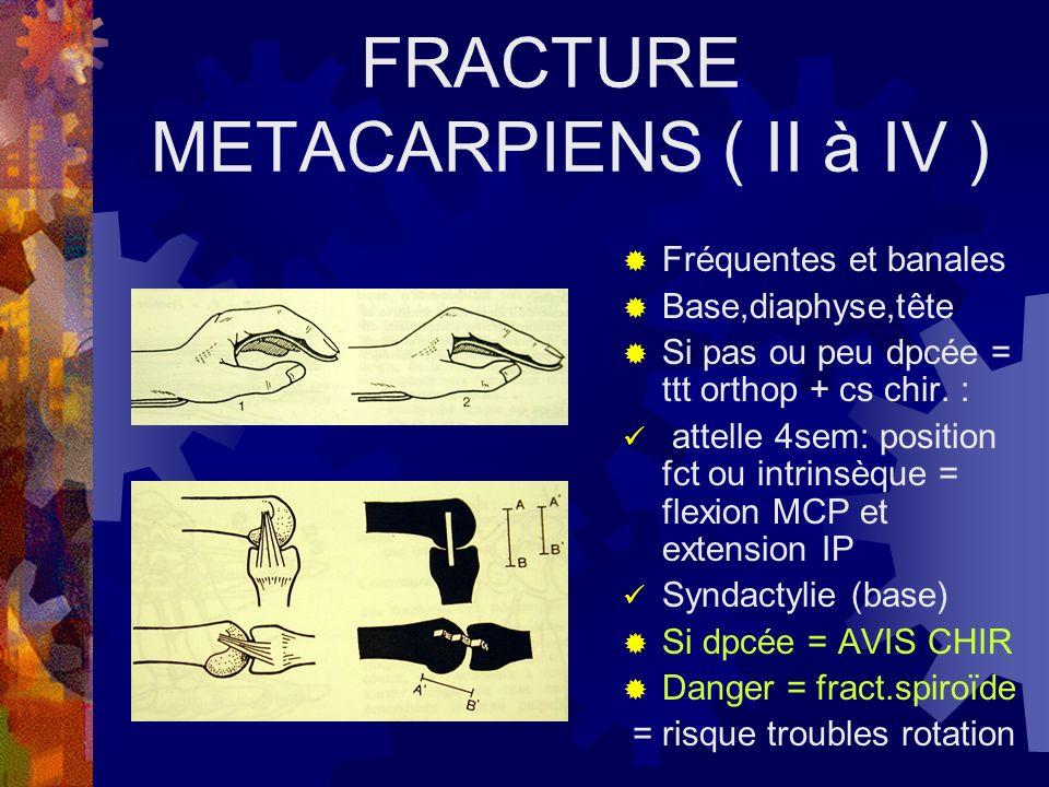 FRACTURE METACARPIENS ( II à IV )
