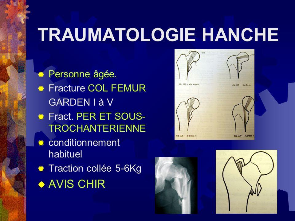 TRAUMATOLOGIE HANCHE AVIS CHIR Personne âgée. Fracture COL FEMUR
