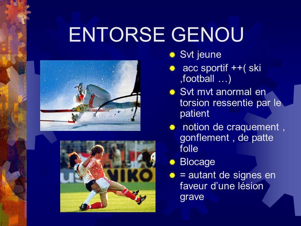ENTORSE GENOU Svt jeune acc sportif ++( ski ,football …)