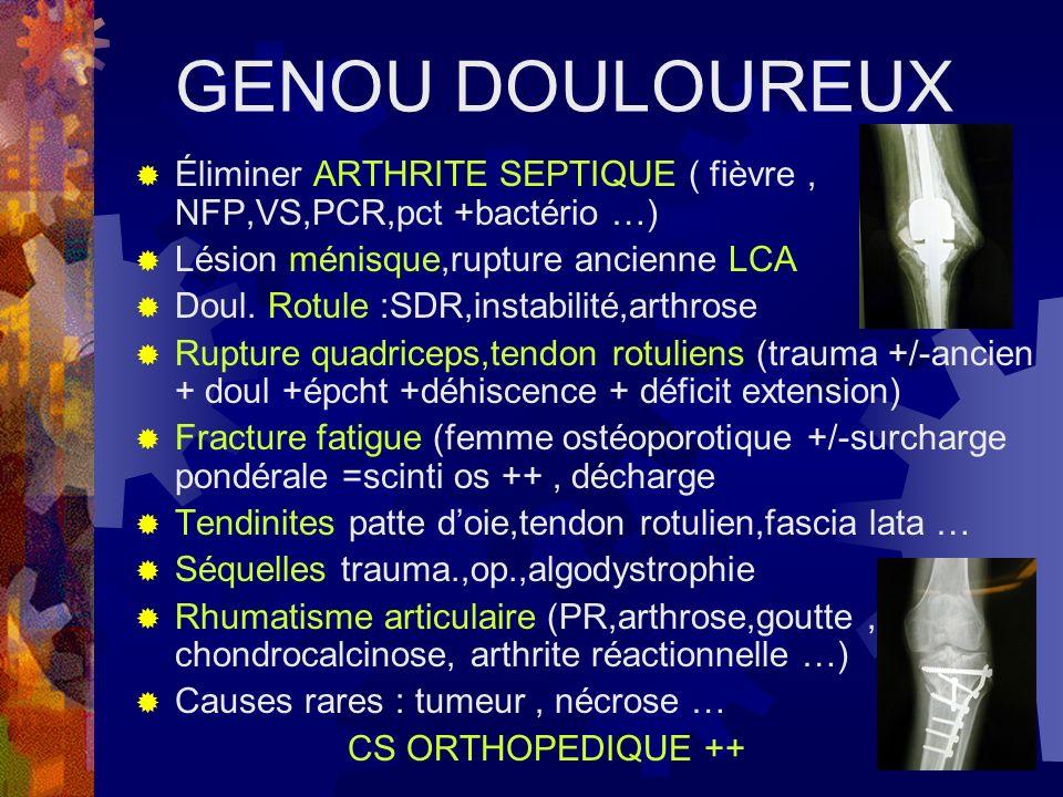 GENOU DOULOUREUX Éliminer ARTHRITE SEPTIQUE ( fièvre , NFP,VS,PCR,pct +bactério …) Lésion ménisque,rupture ancienne LCA.