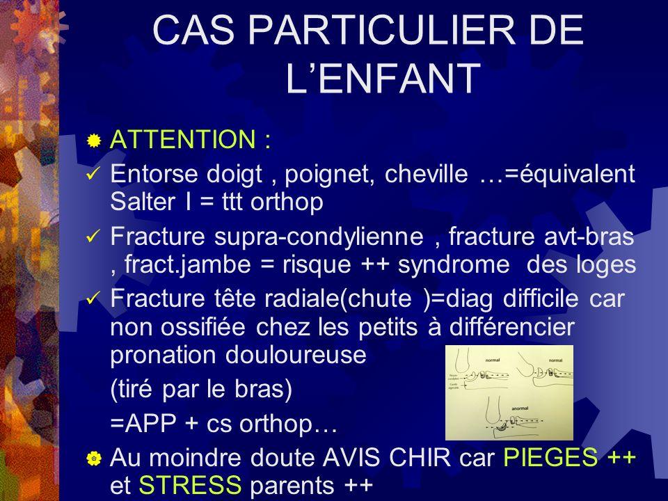 CAS PARTICULIER DE L'ENFANT