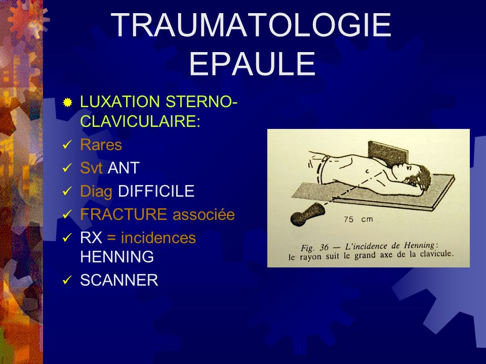 TRAUMATOLOGIE EPAULE LUXATION STERNO-CLAVICULAIRE: Rares Svt ANT