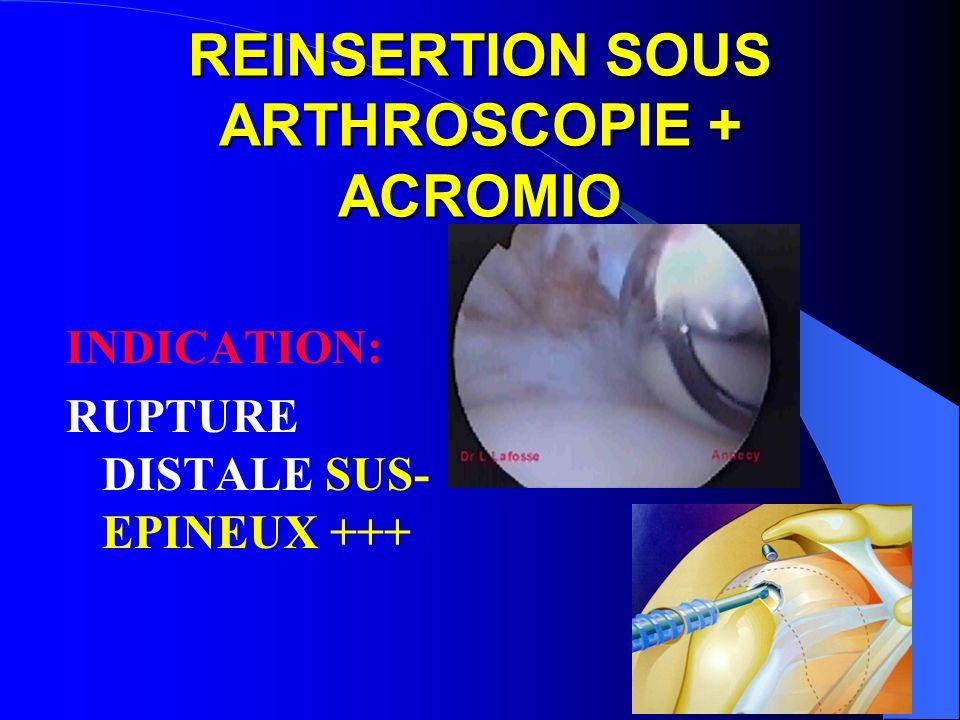 REINSERTION SOUS ARTHROSCOPIE + ACROMIO