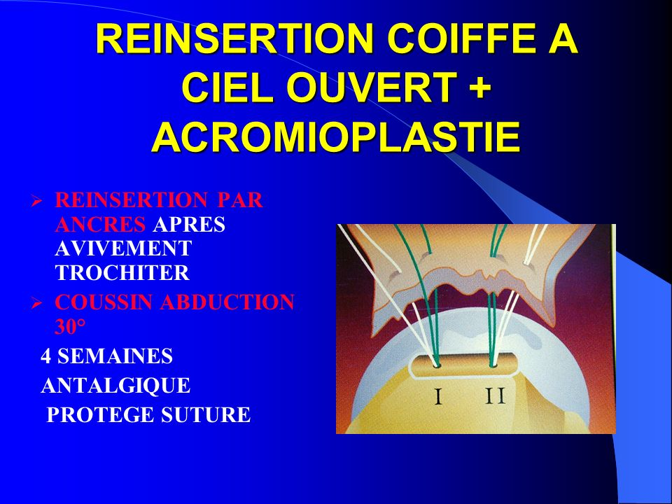 REINSERTION COIFFE A CIEL OUVERT + ACROMIOPLASTIE