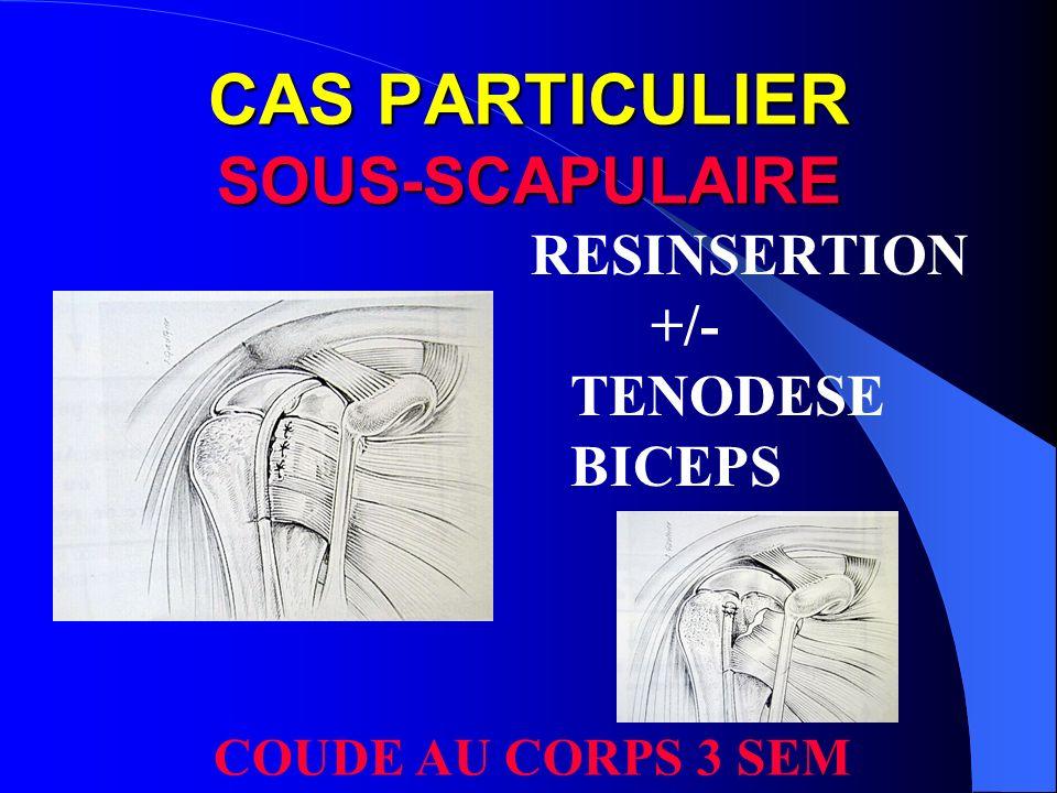 CAS PARTICULIER SOUS-SCAPULAIRE