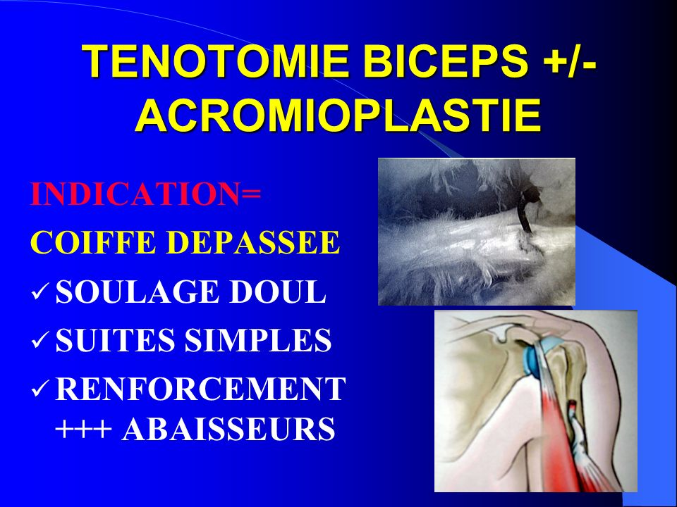 TENOTOMIE BICEPS +/- ACROMIOPLASTIE
