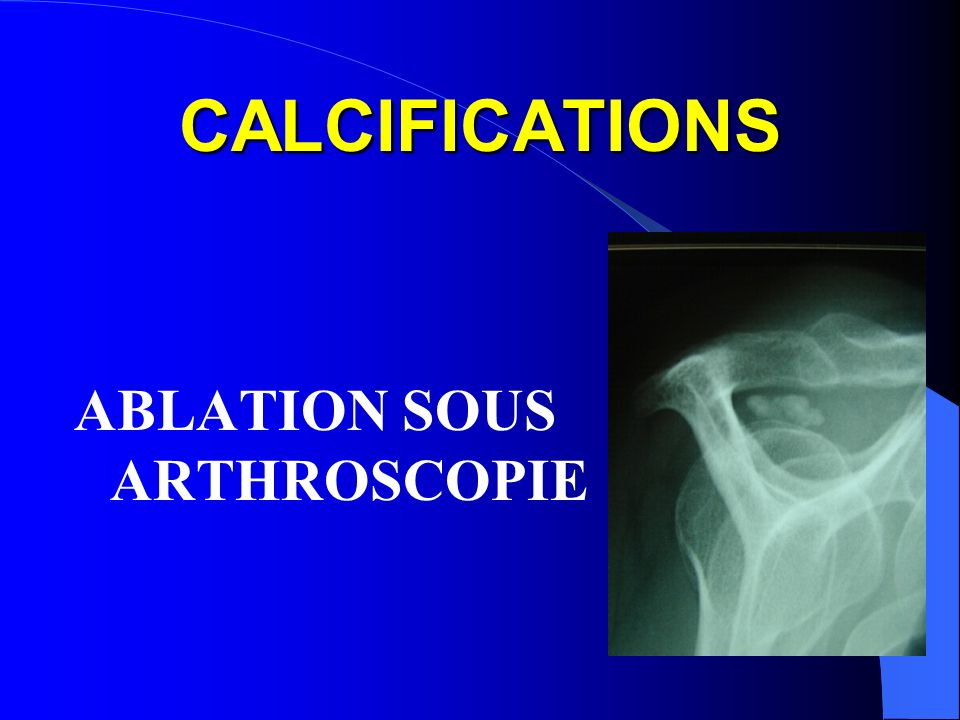 CALCIFICATIONS ABLATION SOUS ARTHROSCOPIE