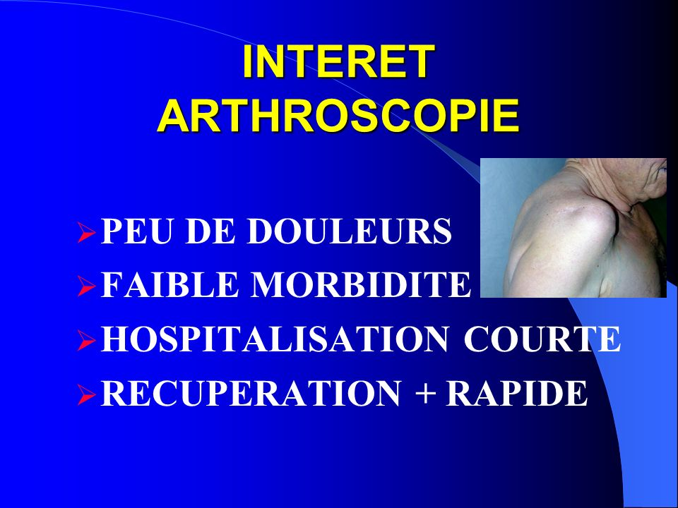 INTERET ARTHROSCOPIE PEU DE DOULEURS FAIBLE MORBIDITE