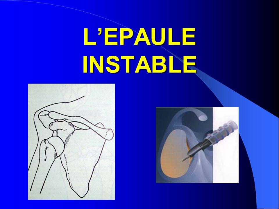 L'EPAULE INSTABLE