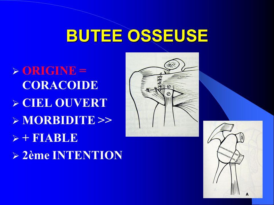 BUTEE OSSEUSE ORIGINE = CORACOIDE CIEL OUVERT MORBIDITE >>
