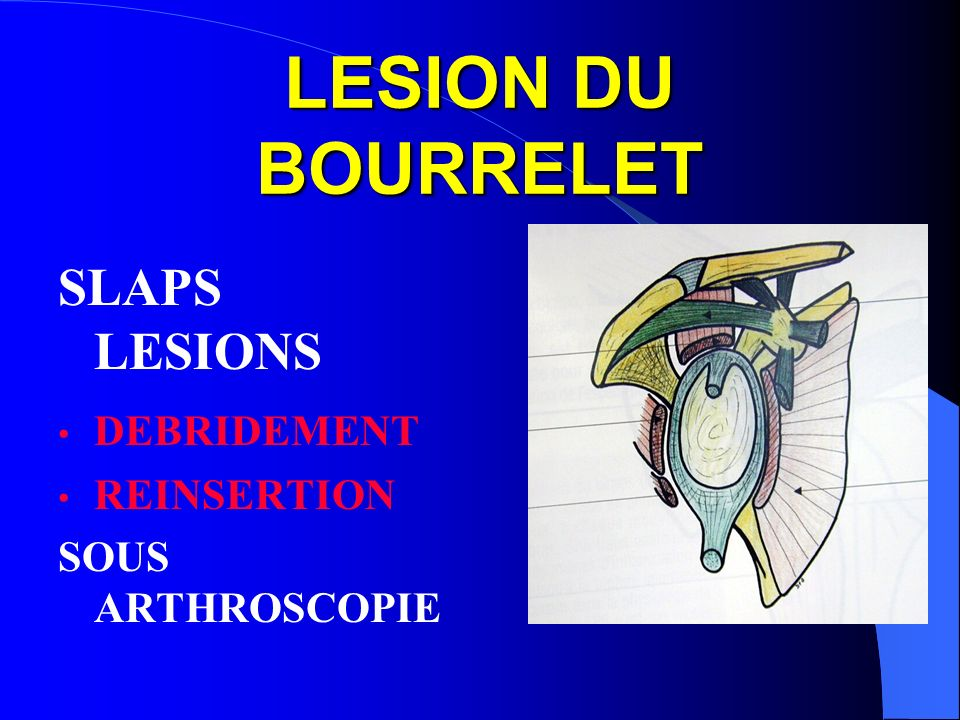 LESION DU BOURRELET SLAPS LESIONS DEBRIDEMENT REINSERTION