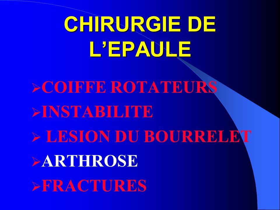 CHIRURGIE DE L'EPAULE COIFFE ROTATEURS INSTABILITE LESION DU BOURRELET