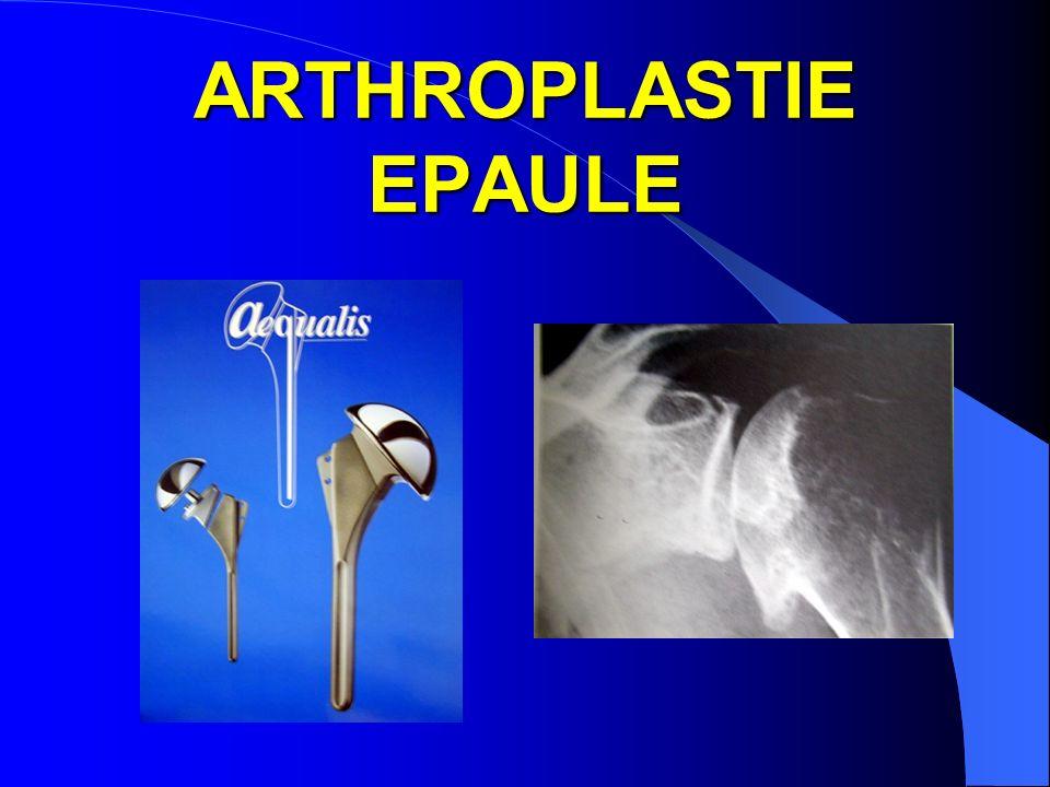 ARTHROPLASTIE EPAULE