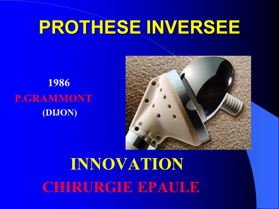 PROTHESE INVERSEE 1986 P.GRAMMONT (DIJON) INNOVATION CHIRURGIE EPAULE