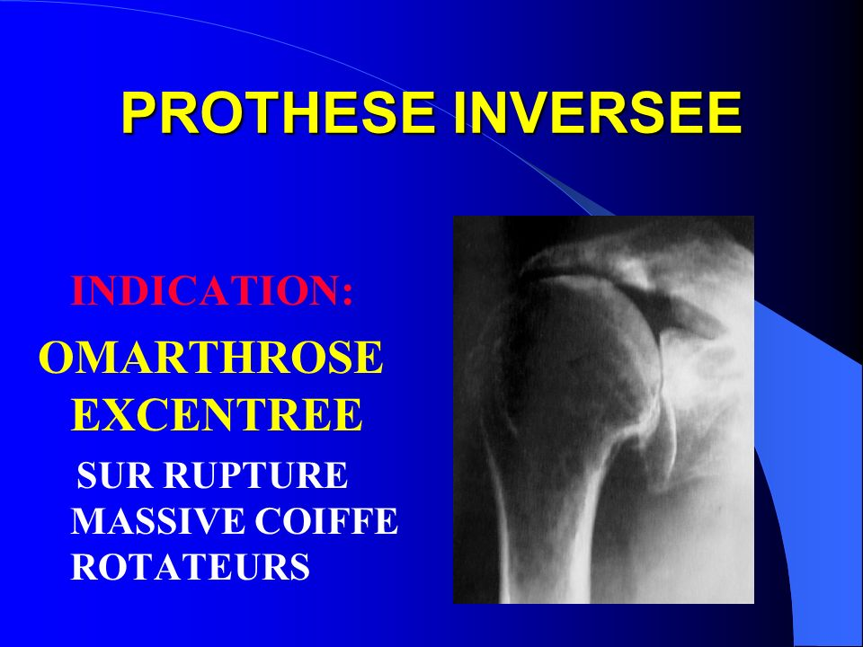 PROTHESE INVERSEE OMARTHROSE EXCENTREE INDICATION: