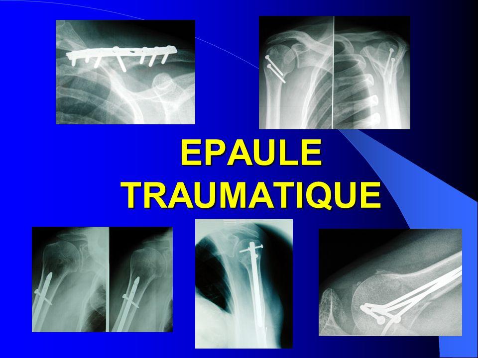 EPAULE TRAUMATIQUE