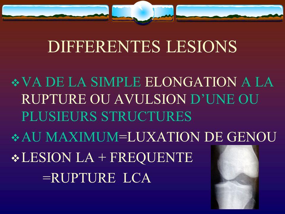DIFFERENTES LESIONSVA DE LA SIMPLE ELONGATION A LA RUPTURE OU AVULSION D'UNE OU PLUSIEURS STRUCTURES.