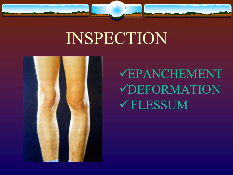INSPECTION EPANCHEMENT DEFORMATION FLESSUM