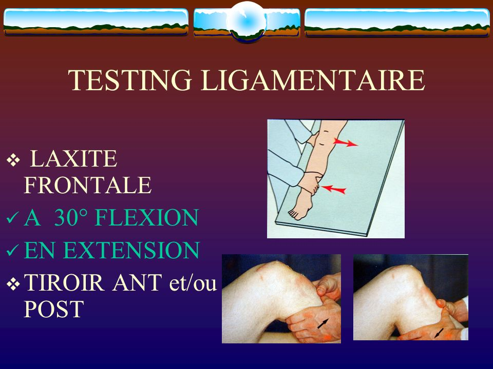 TESTING LIGAMENTAIRE LAXITE FRONTALE A 30° FLEXION EN EXTENSION
