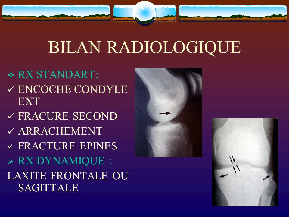 BILAN RADIOLOGIQUE RX STANDART: ENCOCHE CONDYLE EXT FRACURE SECOND