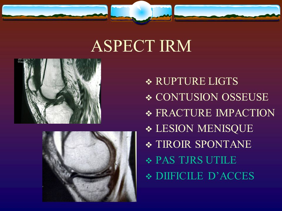 ASPECT IRM RUPTURE LIGTS CONTUSION OSSEUSE FRACTURE IMPACTION