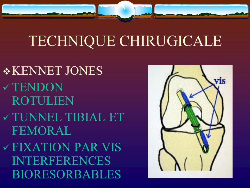 TECHNIQUE CHIRUGICALE