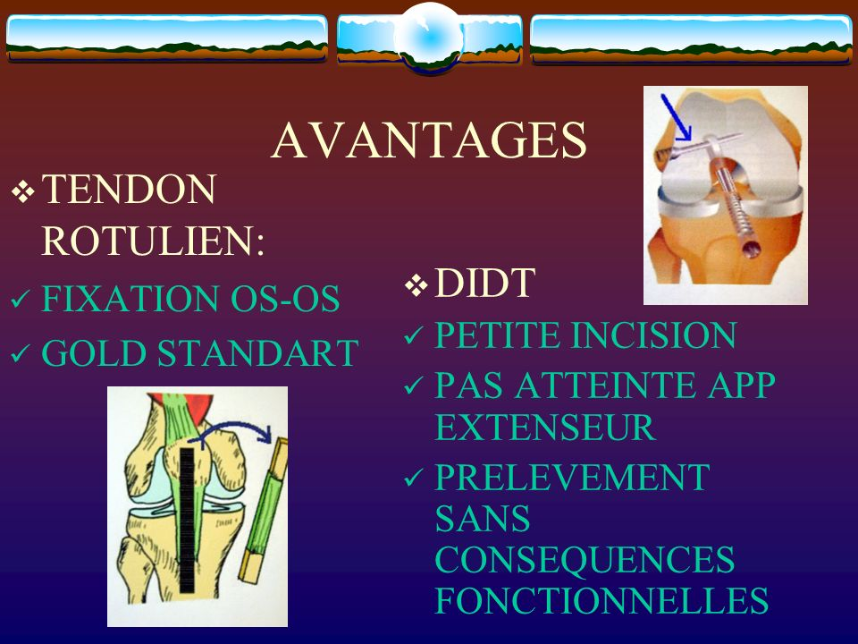 AVANTAGES TENDON ROTULIEN: DIDT FIXATION OS-OS GOLD STANDART