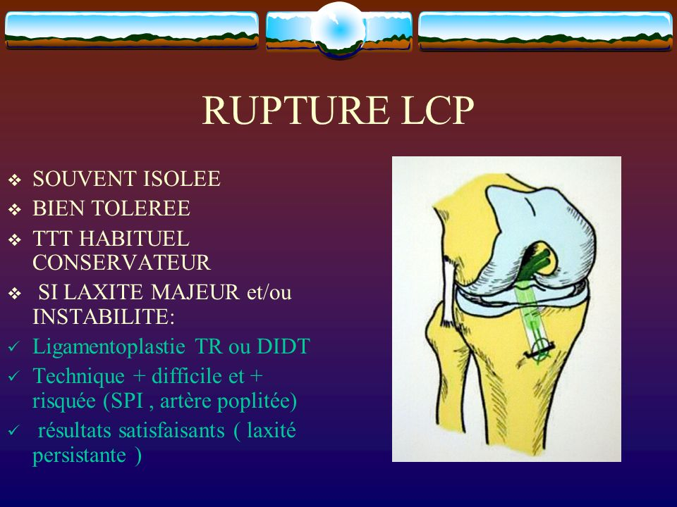 RUPTURE LCP SOUVENT ISOLEE BIEN TOLEREE TTT HABITUEL CONSERVATEUR