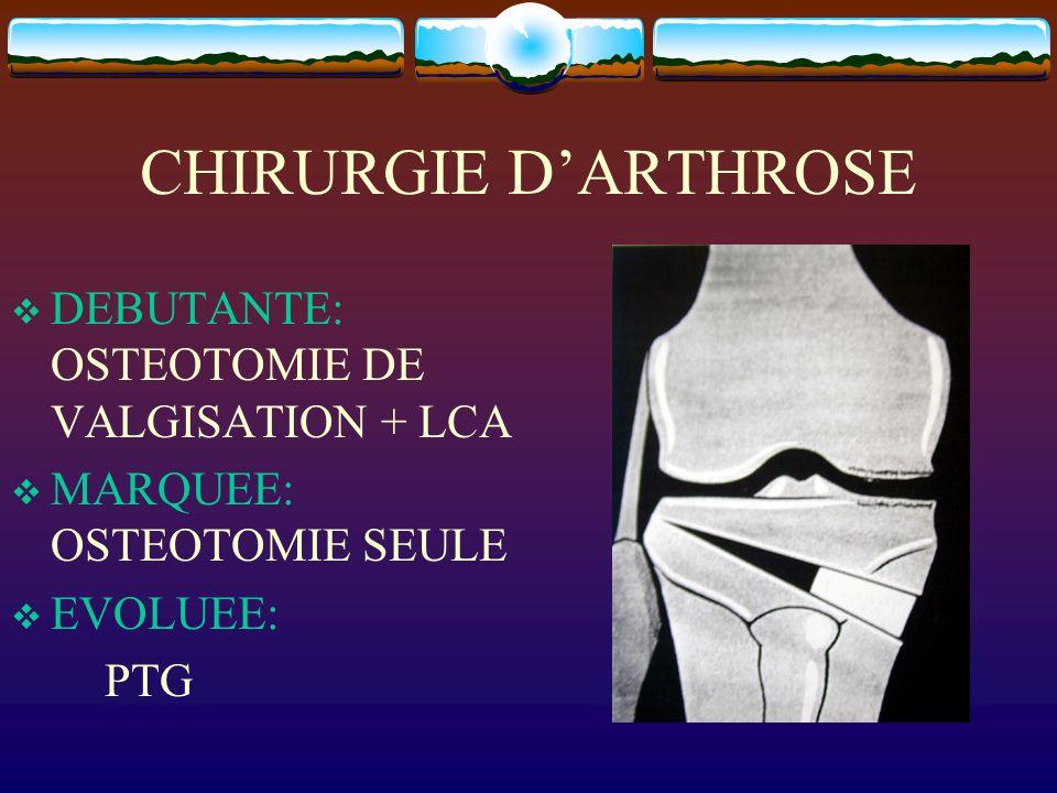 CHIRURGIE D'ARTHROSE DEBUTANTE: OSTEOTOMIE DE VALGISATION + LCA