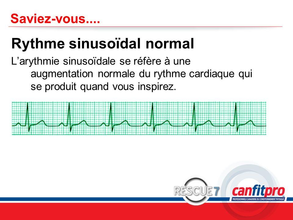 Rythme sinusoïdal normal