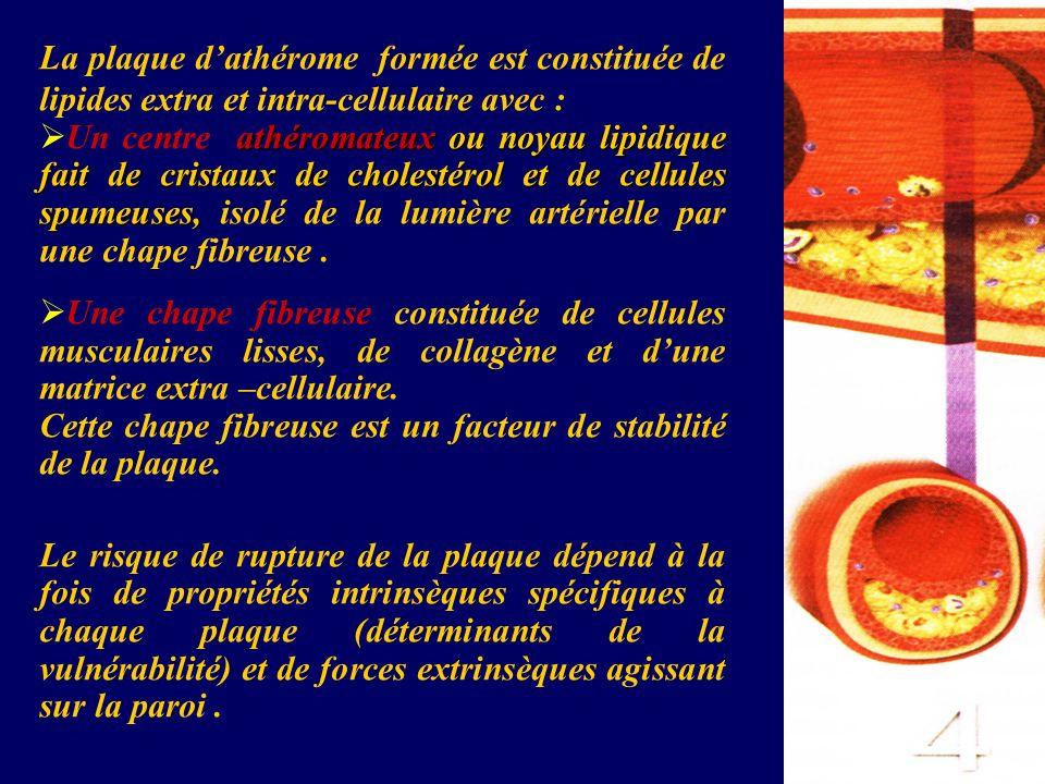 La plaque d'athérome formée est constituée de lipides extra et intra-cellulaire avec :