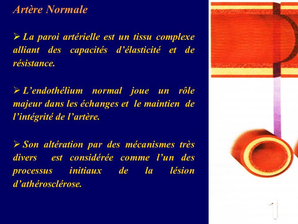 Artère NormaleLa paroi artérielle est un tissu complexe alliant des capacités d'élasticité et de résistance.
