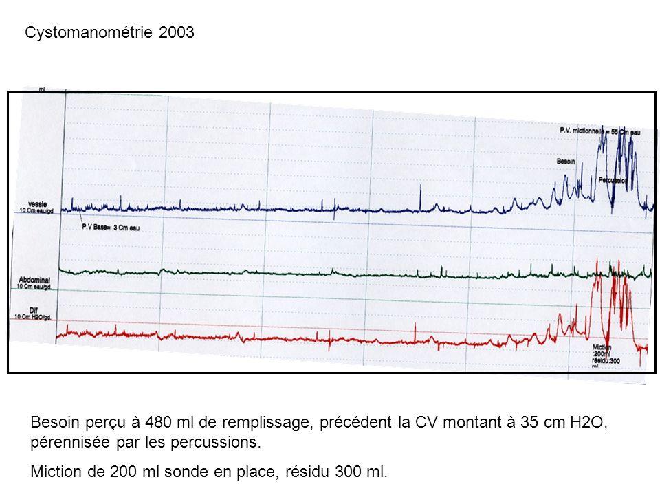 Cystomanométrie 2003 Besoin perçu à 480 ml de remplissage, précédent la CV montant à 35 cm H2O, pérennisée par les percussions.