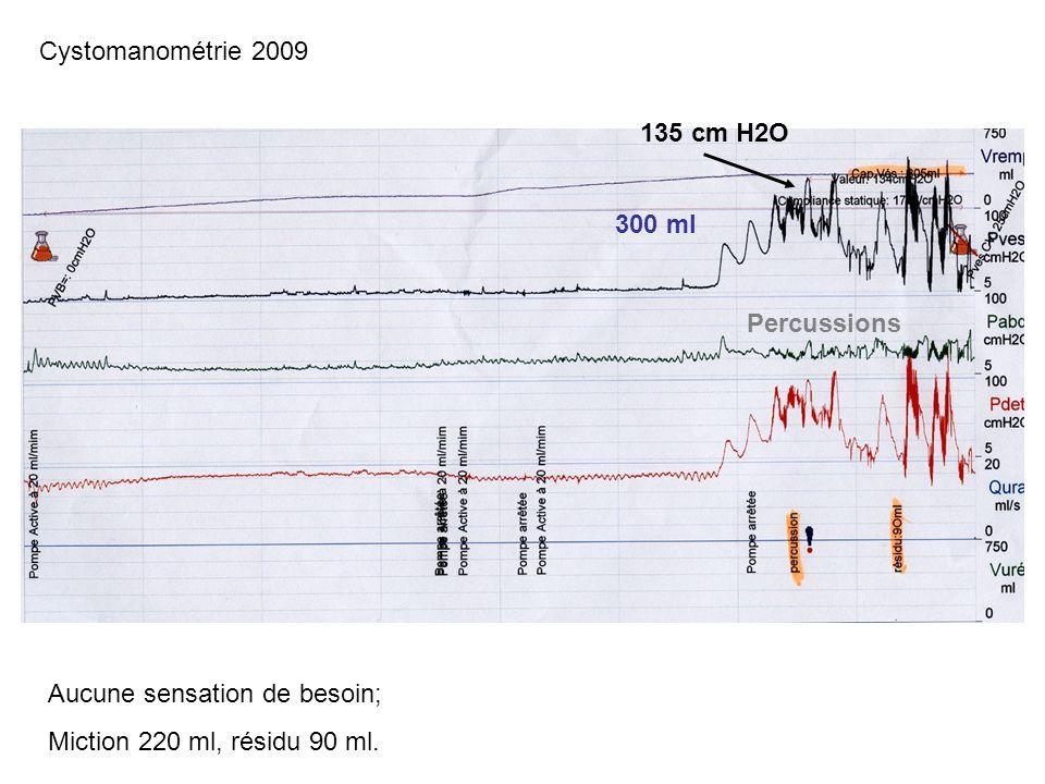 Cystomanométrie 2009 135 cm H2O. 300 ml. Percussions.