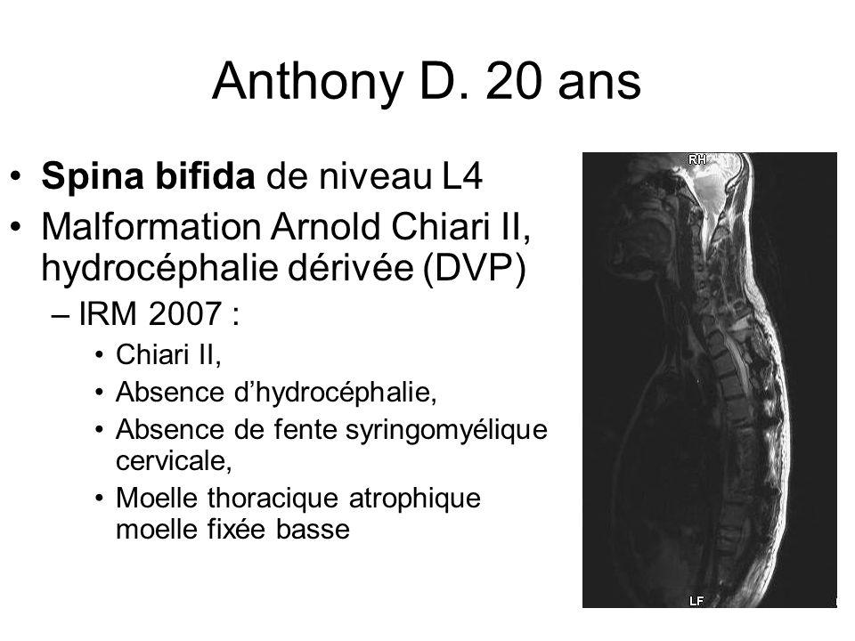 Anthony D. 20 ans Spina bifida de niveau L4