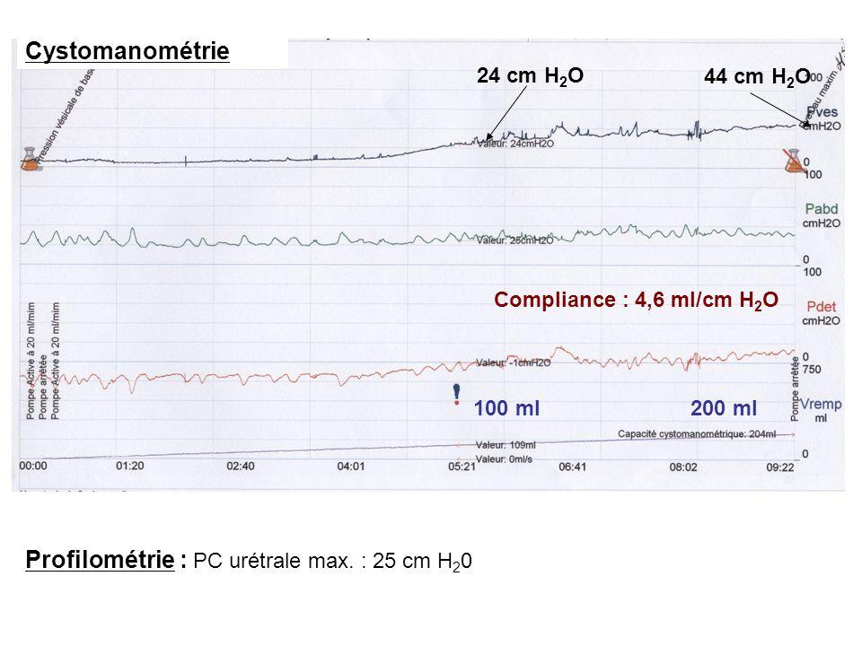 Profilométrie : PC urétrale max. : 25 cm H20