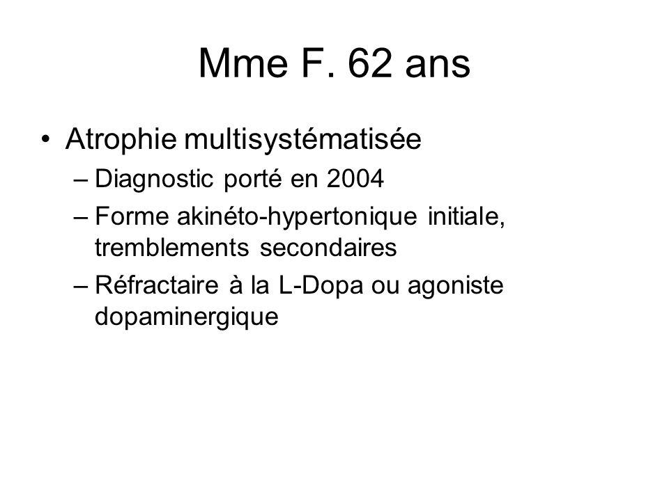 Mme F. 62 ans Atrophie multisystématisée Diagnostic porté en 2004