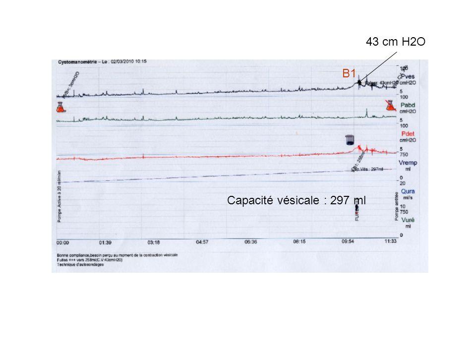 43 cm H2O B1 Capacité vésicale : 297 ml