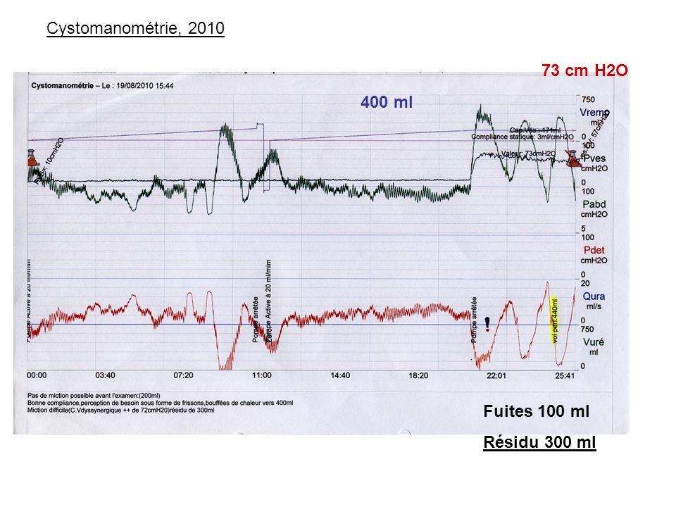 Cystomanométrie, 2010 73 cm H2O 400 ml Fuites 100 ml Résidu 300 ml