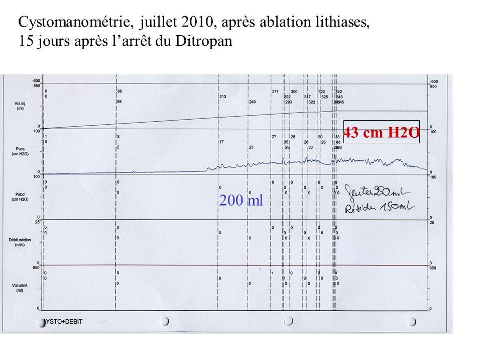 Cystomanométrie, juillet 2010, après ablation lithiases, 15 jours après l'arrêt du Ditropan