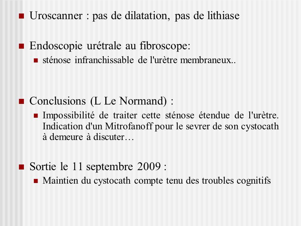 Uroscanner : pas de dilatation, pas de lithiase
