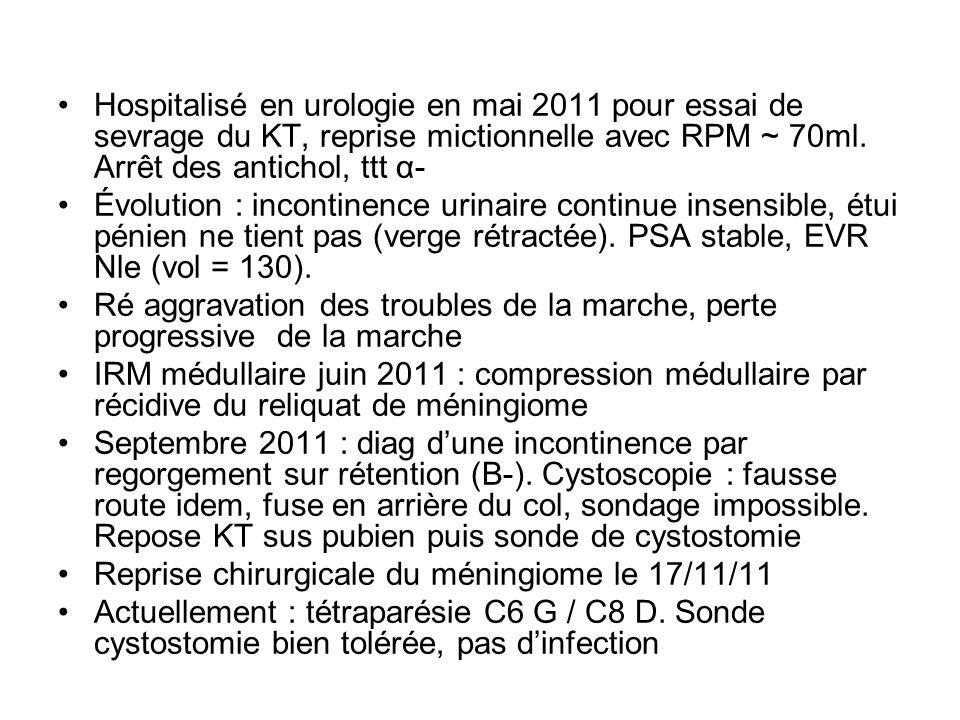 Hospitalisé en urologie en mai 2011 pour essai de sevrage du KT, reprise mictionnelle avec RPM ~ 70ml. Arrêt des antichol, ttt α-