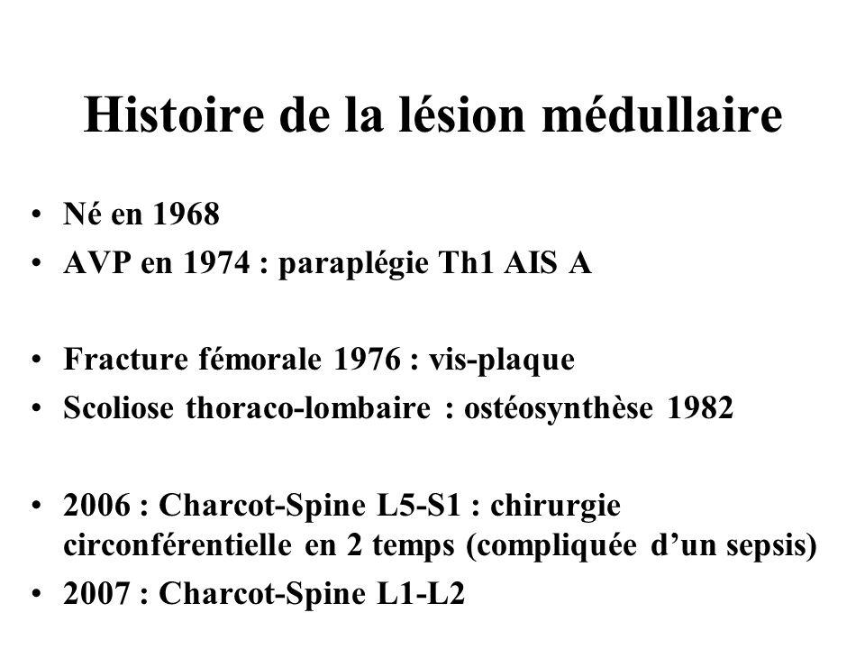 Histoire de la lésion médullaire