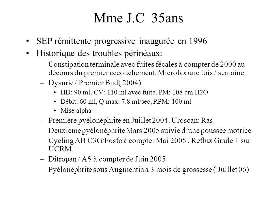 Mme J.C 35ans SEP rémittente progressive inaugurée en 1996