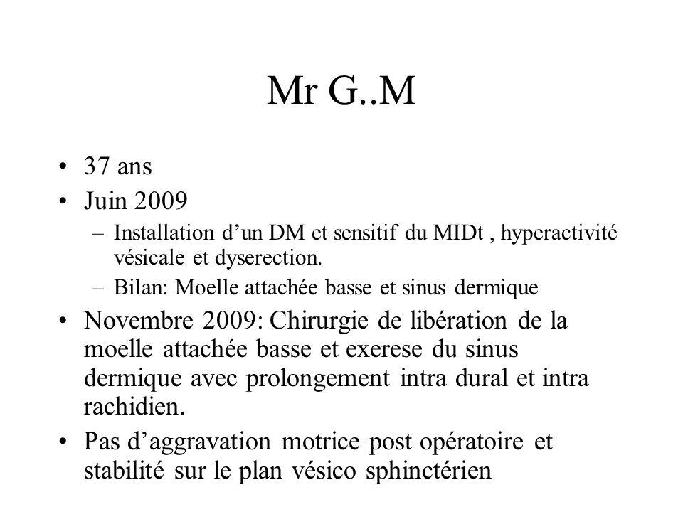 Mr G..M 37 ans. Juin 2009. Installation d'un DM et sensitif du MIDt , hyperactivité vésicale et dyserection.