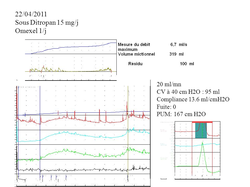 22/04/2011 Sous Ditropan 15 mg/j Omexel 1/j 20 ml/mn